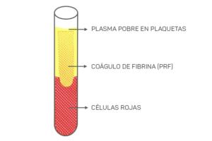 fondo del tubo quedan acumuladas las células rojas de la sangre